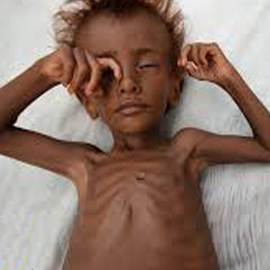 Yemen Famine Appeal - Donate Now to help us deliver aid.